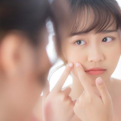 Sering Dialami Usia 20an, Ini Cara Atasi Jerawat Hormonal